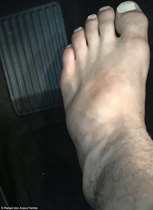 Dos Anjos posted a picture of his injured foot on Twitter as he apologised to fans